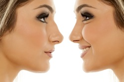 Comparison of female nose, before and after plastic surgery
