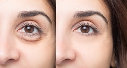 Comparison of results of a beauty care inswollen eye