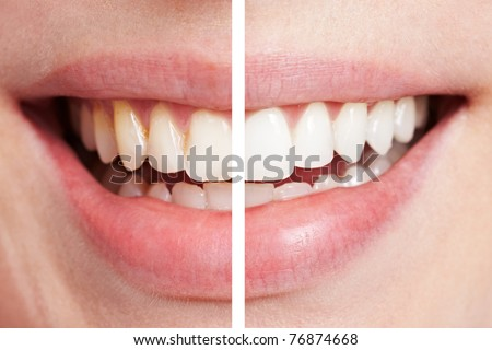 Comparison of teeth before and after bleaching session