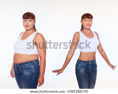 Comparison of women before and after weight loss. Diet and healthy nutrition. Liposuction results.