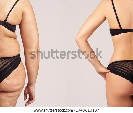 Comparison of women before and after weight loss. Diet and healthy nutrition. Liposuction results. Foto d'archivio ©