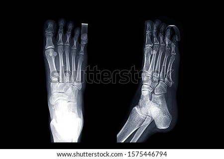 Comparison of X-ray Right foot image AP and oblique view with. Finger Splint  for diagnostic fracture and Gouty arthritis .  #1575446794