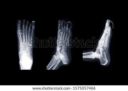 Comparison of X-ray Right foot image  AP , oblique and lateral view with  Finger Splint  for diagnostic fracture and Gouty arthritis .  #1575057466