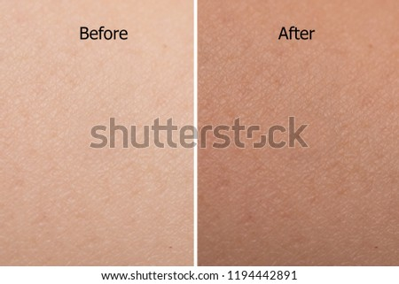 comparison portrait of woman skin color texture after use tan spray #1194442891
