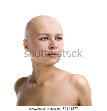 completely bald girl looking at distanse - stock photo
