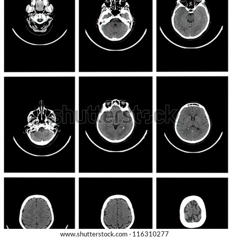Computed tomography of brain