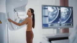 Computer Screen in Hospital Radiology Room: Beautiful Multiethnic Adult Woman Standing Topless Undergoing Mammography Screening Procedure. Screen Showing the Mammogram Scans of Dense Breast Tissues.