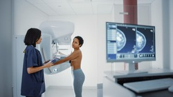 Computer Screen in Hospital Radiology Room: Beautiful Multiethnic Young Woman Standing Topless Undergoing Mammography Screening Procedure. Screen Showing the Mammogram Scans of Dense Breast Tissues.