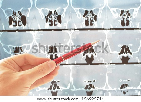 Computer tomography  - stock photo
