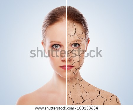 concept of cosmetic effects treatment and skin care face of young woman before and after the procedure