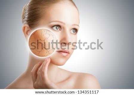 Слишком чувствительная кожа