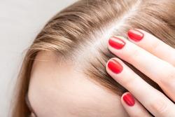 Concept of hair loss. Woman looks at hair loss, close up