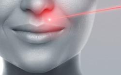Concept of laser hair removal or skin rejuvenation