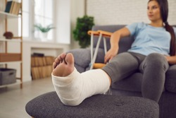 Concept of rehabilitation of people after serious physical accident injury. Female patient with broken leg in plaster cast sitting on sofa. Young woman with foot bone fracture resting on couch at home