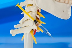 Concept of spinal infiltration for pain management. Lateral view of model of lower jaw, cervical spine with cervical vertebrae, vertebral artery, cervical discs, spinous process, spinal nerves and syr