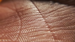 Contact dermatitis. Skin diseases concept. macro skin of human hand.Medicine and dermatology concept. Details of human skin background