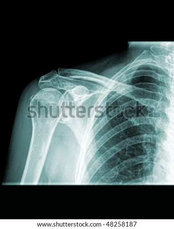 Conventional x-ray of the right shoulder, human shoulder front view