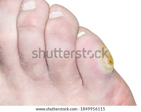 Corn on the pinky toe of a man's leg. Isolated on white background Stockfoto ©