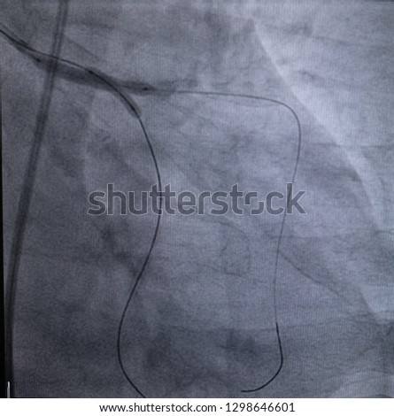 Coronary angiogram of two balloon catheter inflation at Left main to proximal Left anterior descending artery and left main to left circumflex artery