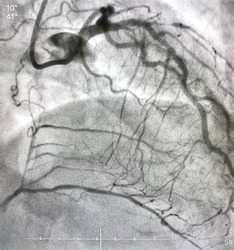 coronary angiogram showed chronic total occlusion (CTO) at right coronary artery (RCA) with collateral from left anterior descending artery (LAD).