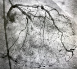 coronary angiogram showed chronic total occlusion (CTO) of left anterior descending artery (LAD).