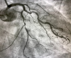 coronary angiogram showed chronic total occlusion (CTO) of left anterior descending artery (LAD)