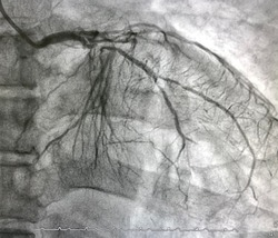 coronary angiogram showed chronic total occlusion (CTO) of left anterior descending artery (LAD) and left circumflex artery (LCx).