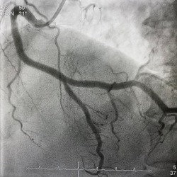 coronary angiogram showed right coronary artery (RCA) given collateral to left anterior descending artery (LAD) that had chronic total occlusion (CTO).