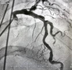 Coronary angiogram shown diffuse coronary ectasia at left anterior descending artery (LAD) and left circumflex artery (LCx).