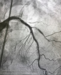 Coronary angiogram shown in stent restenosis (ISR) at left main to left anterior descending artery (LAD) and left circumflex artery (LCx).