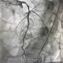 Coronary angiogram shown left anterior descending artery (LAD) stenosis with coronary aneurysm.