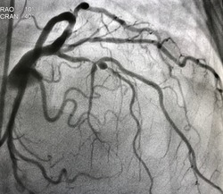 Coronary angiogram shown mid left anterior descending artery (LAD) stenosis during cardiac catheterization.