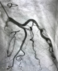 Coronary angiogram shown normal coronary angiogram with sternum steel and prosthetic valve mean that patient undergoing open heart surgery