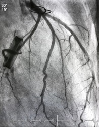 Coronary angiogram shown normal left coronary artery with sternum steel and prosthetic heart valve mean that patient undergoing open heart surgery.