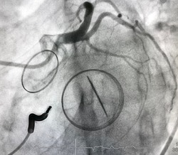 Coronary angiogram shown normal left coronary artery with sternum steel, prosthetic heart valve and automatic implantable cardioverter defibrillator (AICD)