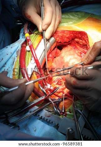 Coronary artery bypass surgery. anastomosis between internal thoracic artery and the coronary artery. Cardiosurgical operation.