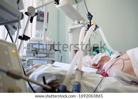 Coronavirus pandemic. Patient with coronavirus pneumonia in critical state. Intubated senior under ventilator lying in coma in intensive care department. Stockfoto ©