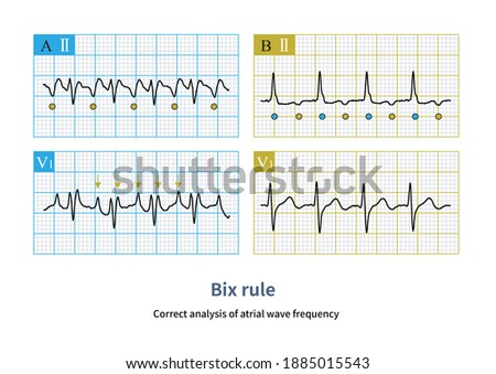 Correct analysis of atrial wave frequency.In tachycardia, when one P wave is in the middle of RR interval, we should be alert to the other P wave hiding in QRS. Stock fotó ©