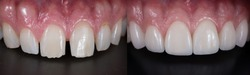 Correction of spacing teeth with dental ceramic veneers, before and after.