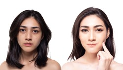 Cosmetology concept. Beautiful young asian woman has freckles, blemish, acne and dull skin, compare another side charming beautiful woman has nice and bright skin of face. Attractive girl get happy