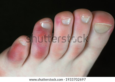 Covid toes. Coronavirus symptoms - swelling and discoloration, purplish color, pain and rough skin. Stock photo ©