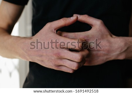 Cracked, flaky skin on the hands. Dermatological problems of psoriasis. Hard, cracked skin on the finger in a woman's hands. Hand stains, dry skin. Psoriasis, allergy