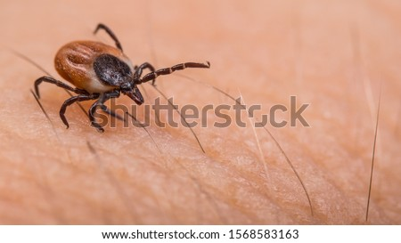 Crawling deer tick on human hairy skin background. Ixodes ricinus or scapularis. Dangerous parasitic mite on blurry pink texture. Disgusting biting insect. Encephalitis infection. Tick-borne diseases. Stock photo ©