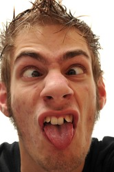 Crazy wacky ugly man with crooked teeth and acne and veins above his eyes
