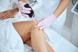 Cropped photo of a professional dermatologist directing the laser light at the female patient leg
