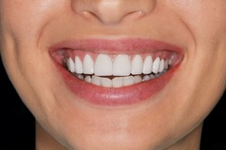Cropped shot close up of  beautiful healthy white teeth smiling woman. Female mouth, teeth whitening, healthcare concept.