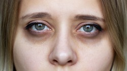 Cropped shot of a young female face. Green eyes with dark circles under the eyes and with red capillaries. Bruises under the eyes are caused by insomnia, fatigue, nervousness, lack of sleep and stress