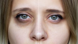 Cropped shot of a young female face with makeup. Female green eyes with bruises under eyes before and after cosmetic treatment. Dark circles under the eyes