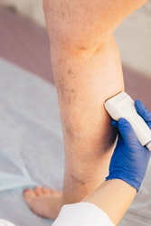 cropped ultrasound exam veins on the leg, vein thrombosis, varicose veins