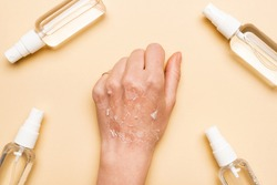 cropped view of female hand with dry, exfoliated skin near spray bottles with antiseptic on beige
